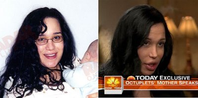 Nadya Suleman Before After Surgury?